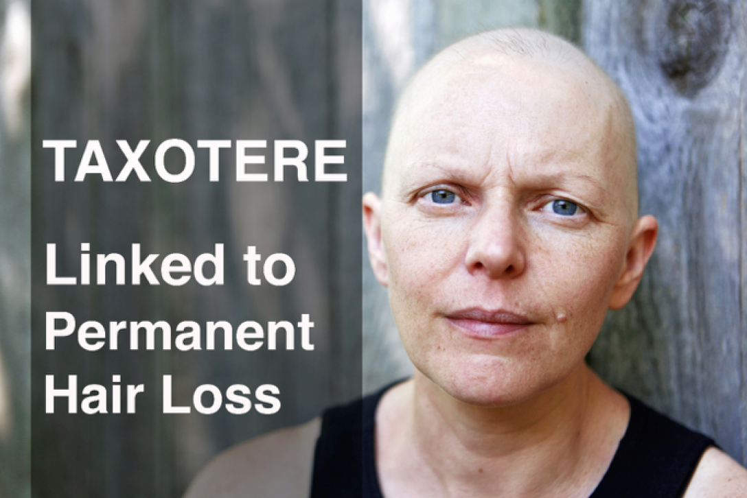 Studies have shown that the use of Taxotere can result in permanent hair loss and thinning in a large percentage of women. If you took Taxotere between 2004-2015 and are experiencing hair loss or significant hair thinning, contact us for a free consultation.